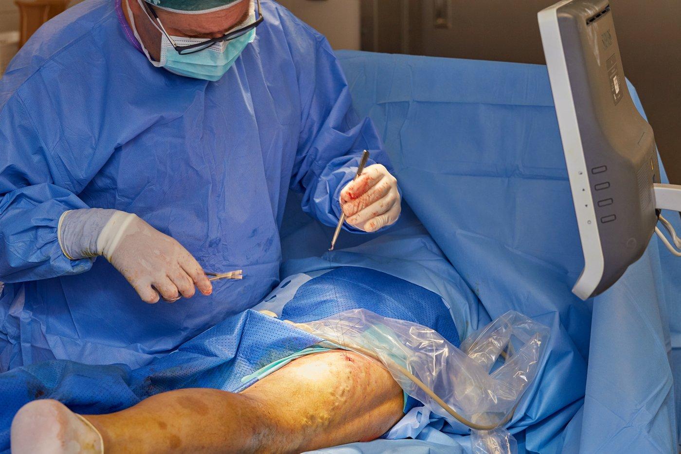 Zabieg podwiązania niewydolnego perforatora na udzie