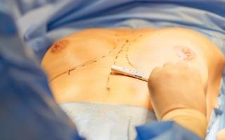 Zabieg powiększania piersi implantami 3