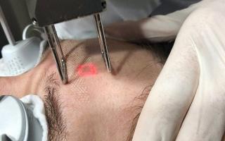 See how laser facial resurfacing works
