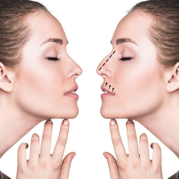 Operacja plastyczna nosa (rhinoplastyka) Kielce